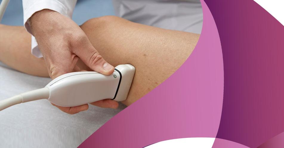 Checkup vascular e sua importância